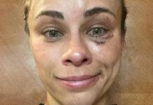 Η Paige VanZant μετά το τέλος του αγώνα